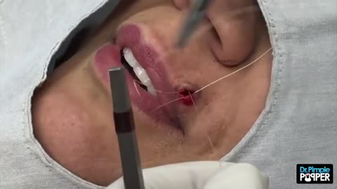 "Blackhead ""Button"" on the Upper Lip!"