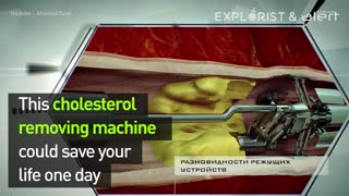 Cholesterol Machine - Video