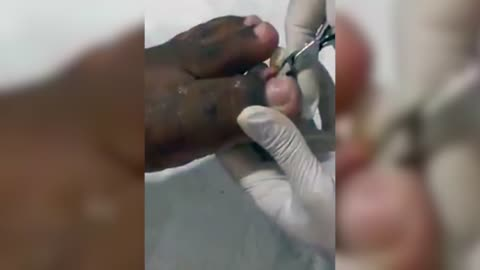 NSFW - The Nastiest Ingrown Toe Nail