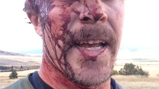 Hiker Survives Two Grizzly Bear Attacks - Video