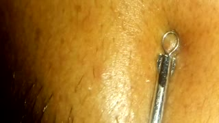 Extracting blackhead / Whitehead  - Video