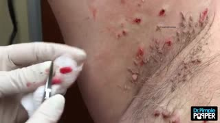 Hansel & Gretel Skin Tags with Dr Pimple Popper - Video