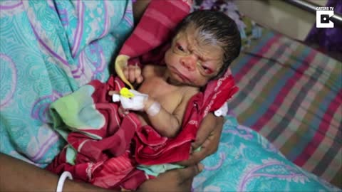 Shocking face of newborn baby who looks 80-years-old