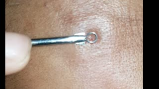 Pimple popping so Painful  - Video