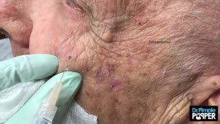 When Blackheads Clam Up - Video