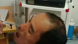 Doctor Retrieves Strange Creature From Man's Nose - Video
