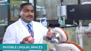 Best Dentist Specialist in Delhi NCR - Video