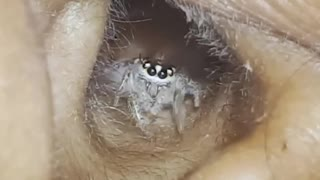 The Shocking Tiny Spider Found In Ear