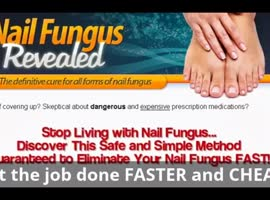 Permanently Remove Foot Fungus Faster