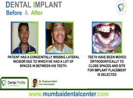 Dental Clinic in Ghatkopar | Dental implants in Navi Mumbai - Video