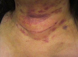 Pictures after thyroid surgery - Video