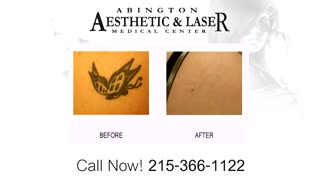 Tattoo Removal Philadelphia - Video