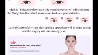 Eye Plastic Surgery Video-Best Plastic Surgery Clinic - Video