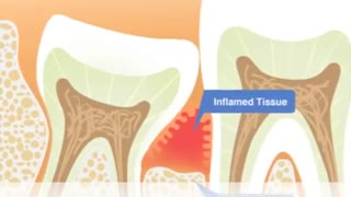 Dr. Hamid Ryan Kazemi- Wisdom Teeth Information for Parents - Video