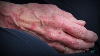 Symptoms of Psoriatic Arthritis - What You Must Know! - Video