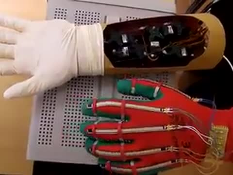 anatomical arm robot