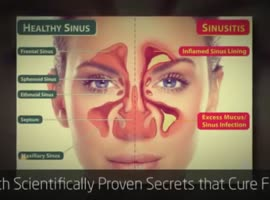 Sinus Infection Home Remedy - Video