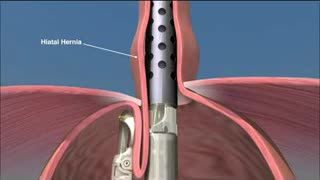 Lung Cancer Surgery Los Angeles - Video