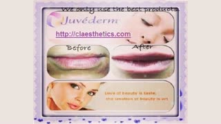 Lip Filler Specialist Bra - Video